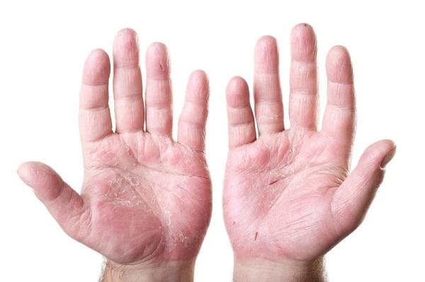 تاثیر پروبیوتیک بر سلامت پوست چیست