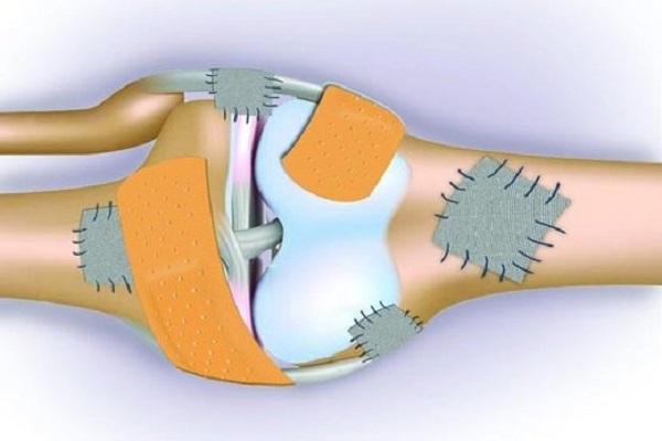 پوکی استخوان چیست و چطور به وجود میآید